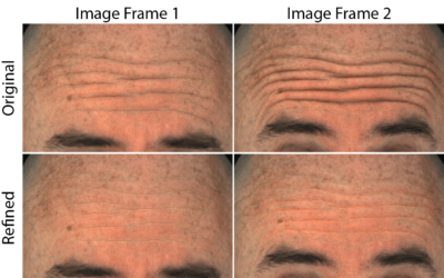 Improved Reconstruction of Deforming Surfaces by Cancelling Ambient Occlusion