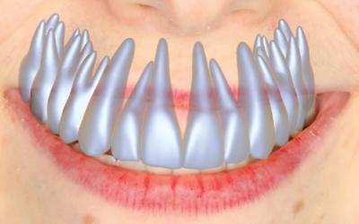 Model-Based Teeth Reconstruction