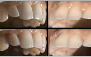 Appearance Capture and Modeling of Human Teeth